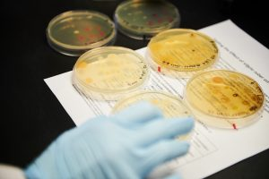Photo of bacteria cultures